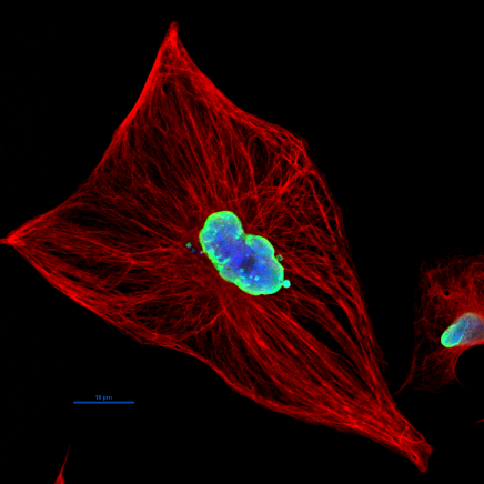 U373 MG astrocytoma cells stained by immunufluorescence